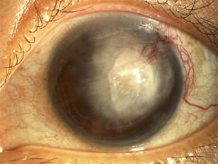 Corneal Blindness - Asencio