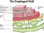 esophagus - Beckett