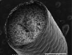 nerve tissue - haycock