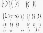07_07b-Turner_syndrome