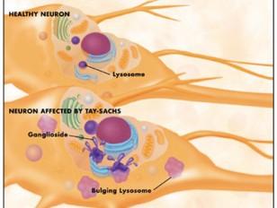 Tay-Sachs-disease-neuron-nerve