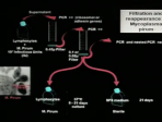 DNA between Physics and Biology - Lindau-Nobel - Luc Montagnier - Medicine 2010