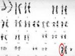 klinefelter-s-syndrome-karyotype-pictures